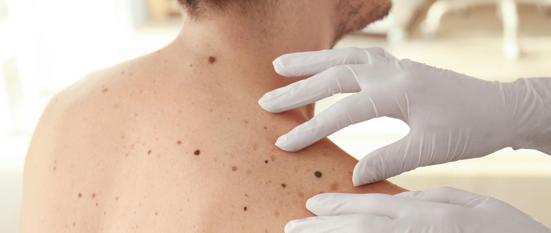 kliniki dermatologia